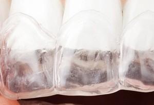 ortodontista